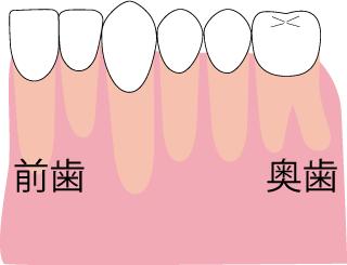 アゴが小さく、歯が収まらない場合