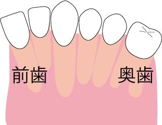 無理やり歯を並べる