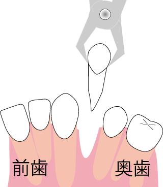 歯を抜いてスペースを作る