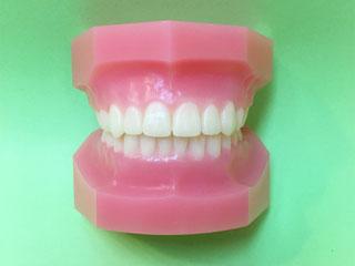 歯を抜いた後の仕上がり