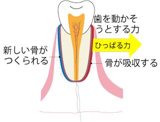 矯正治療の歯の動き