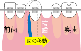 水平方向(横への)歯の移動