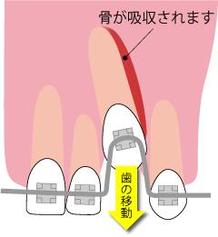 上下の歯の移動