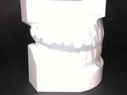 歯ぎしり防止装置