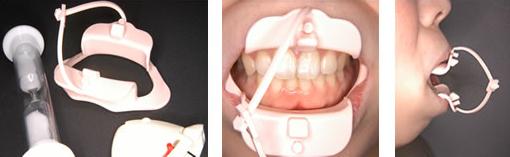 リップトレーニング(口腔筋機能療法器具)